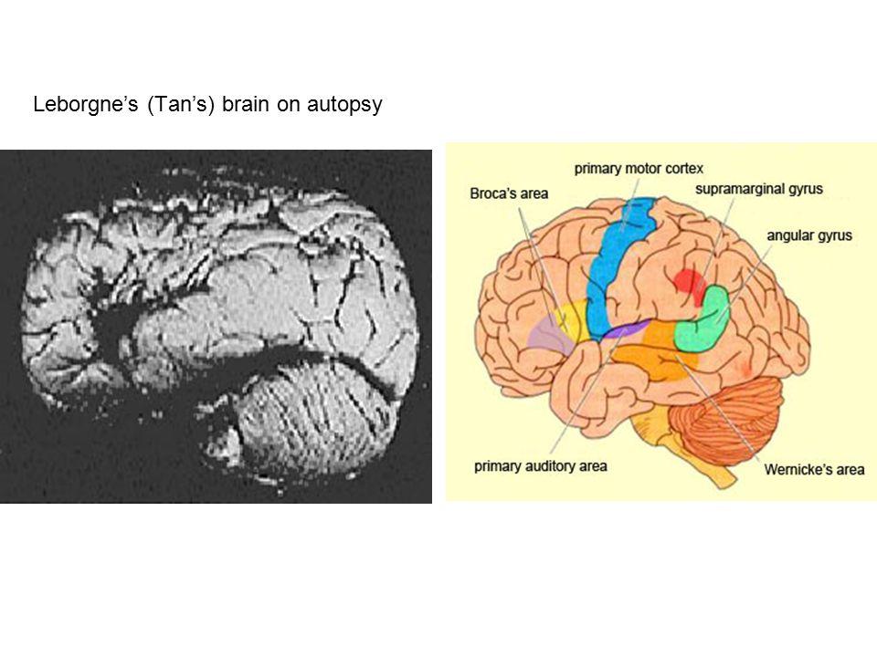 Leborgne's (Tan's) brain on autopsy