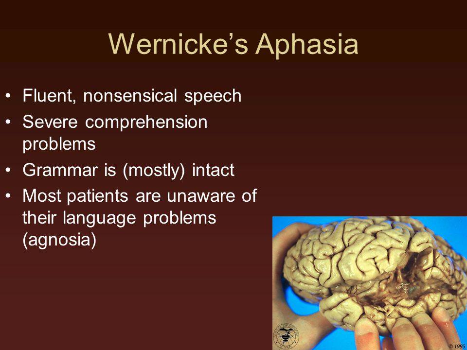 Wernicke's Aphasia Fluent, nonsensical speech Severe comprehension problems Grammar is (mostly) intact Most patients are unaware of their language problems (agnosia)