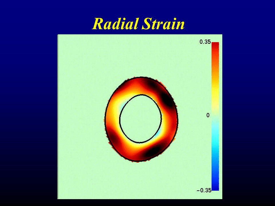 Radial Strain