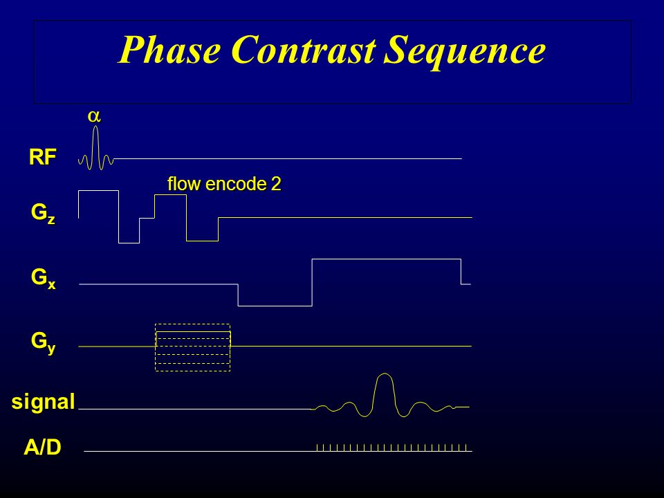 Phase Contrast Sequence flow encode 2 A/D GxGxGxGx RF GyGyGyGy GzGzGzGz signal