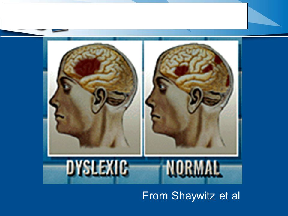 FMRI Summary -Dyslexia From Shaywitz et al