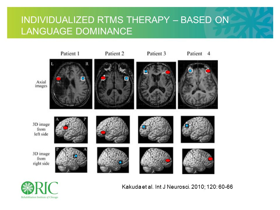 INDIVIDUALIZED RTMS THERAPY – BASED ON LANGUAGE DOMINANCE Kakuda et al.