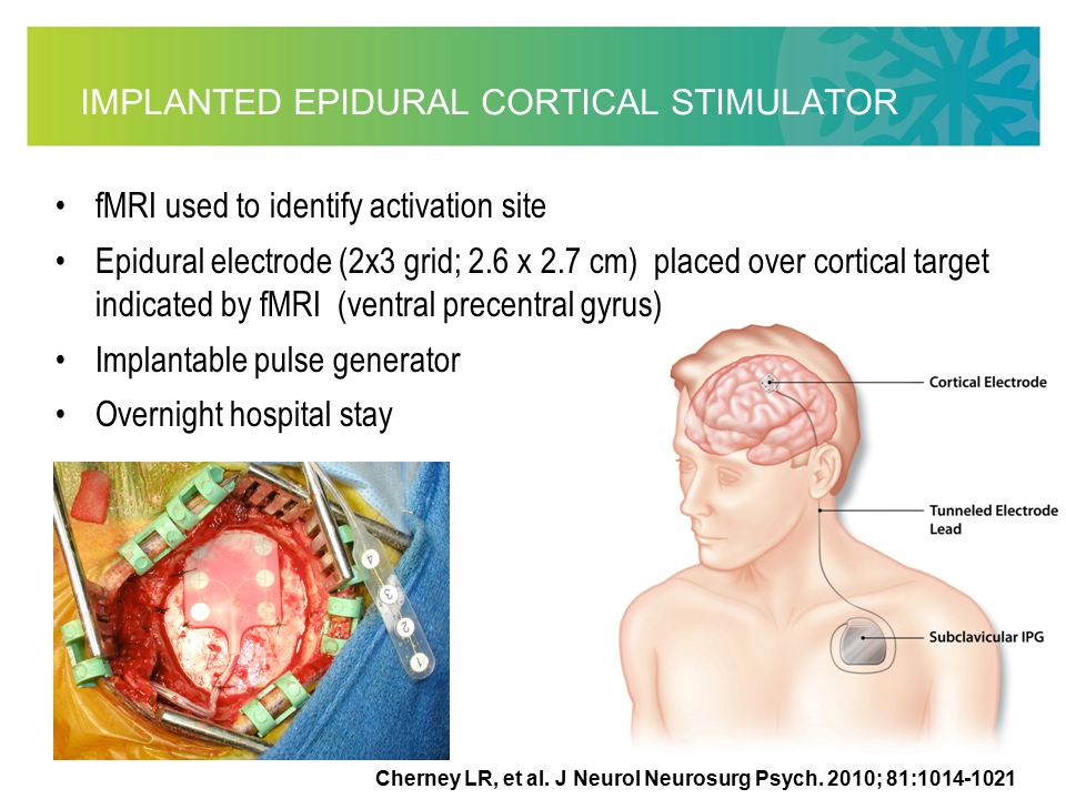 IMPLANTED EPIDURAL CORTICAL STIMULATOR fMRI used to identify activation site Epidural electrode (2x3 grid; 2.6 x 2.7 cm) placed over cortical target indicated by fMRI (ventral precentral gyrus) Implantable pulse generator Overnight hospital stay Cherney LR, et al.