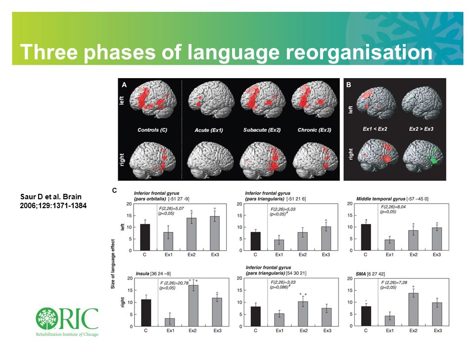 9/2/11 2 A Neural Interface for Artificial Limbs: Targeted Muscle Reinnervation INTERHEMISPHERIC INHIBITION IN LANGUAGE Theory: Rebalancing cortical excitability may improve outcome High freq.