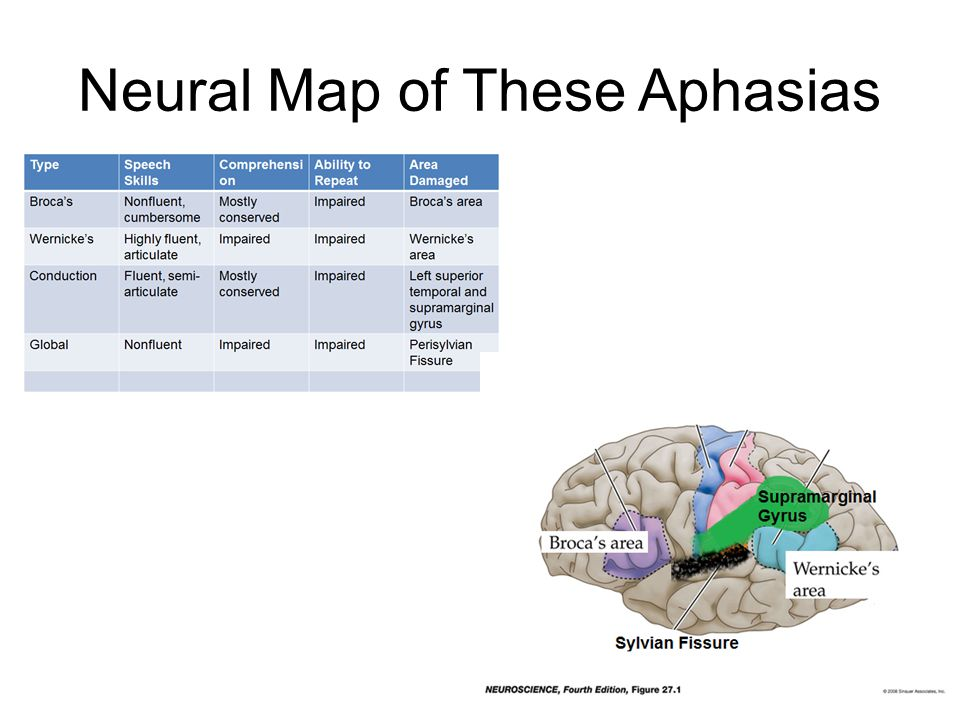 Neural Map of These Aphasias