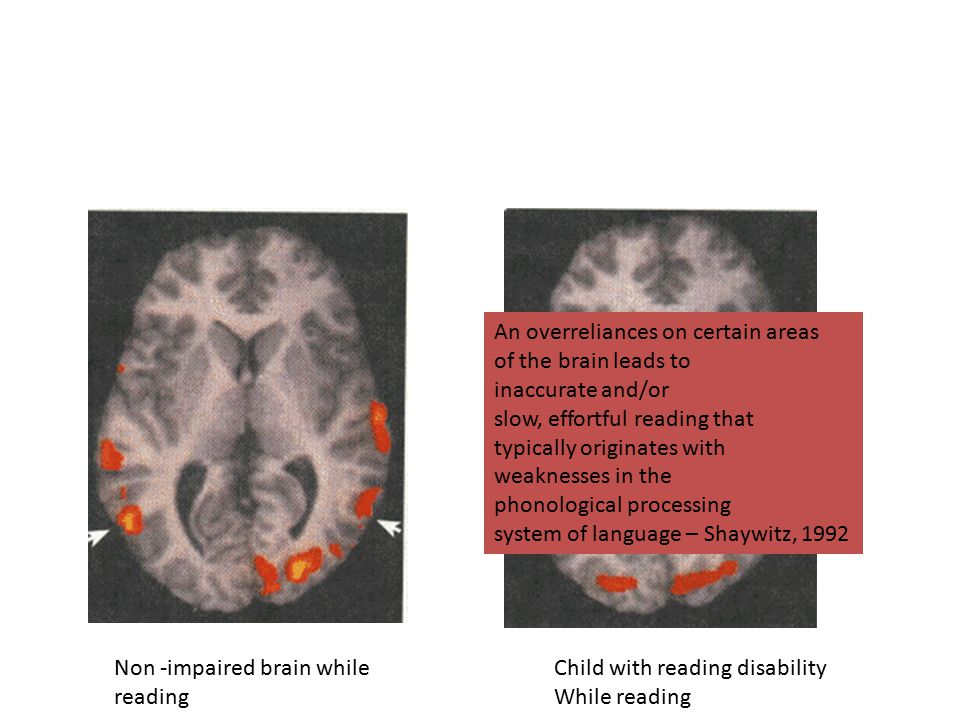 Non -impaired brain while reading Child with reading disability While reading An overreliances on certain areas of the brain leads to inaccurate and/o