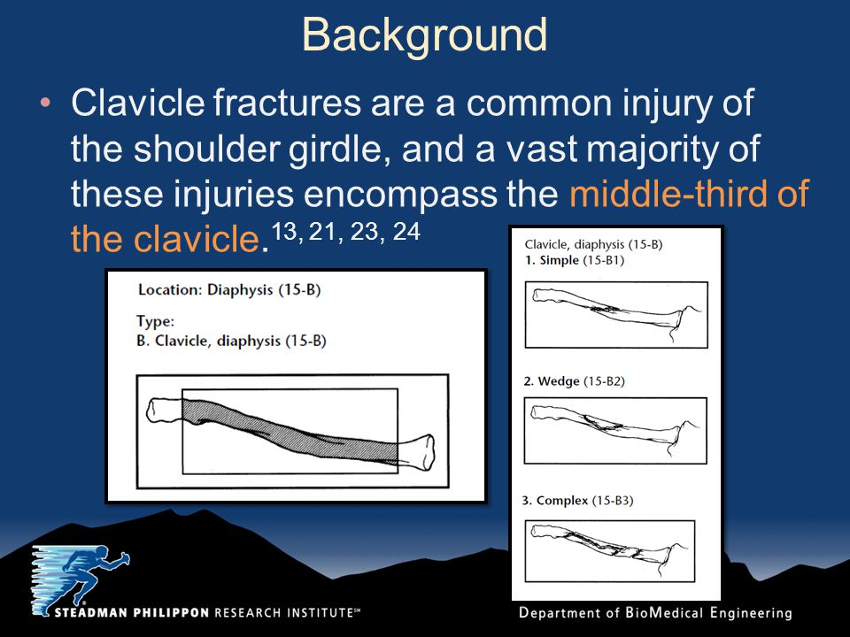 Background Clavicle fractures are a common injury of the shoulder girdle, and a vast majority of these injuries encompass the middle-third of the clav