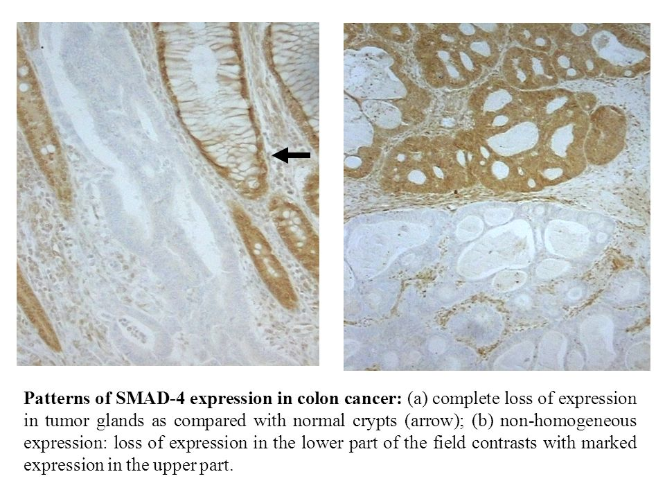 Patterns of SMAD-4 expression in colon cancer: (a) complete loss of expression in tumor glands as compared with normal crypts (arrow); (b) non-homogeneous expression: loss of expression in the lower part of the field contrasts with marked expression in the upper part.