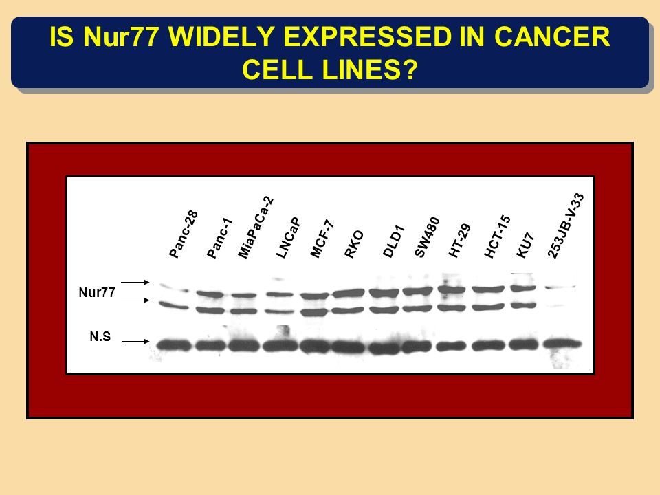 IS Nur77 WIDELY EXPRESSED IN CANCER CELL LINES? Panc-28 Panc-1 MiaPaCa-2 LNCaP MCF-7 RKO DLD1 SW480 HT-29 HCT-15 KU7 253JB-V-33 Nur77 N.S