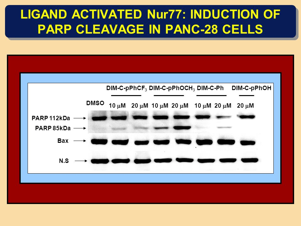 LIGAND ACTIVATED Nur77: INDUCTION OF PARP CLEAVAGE IN PANC-28 CELLS DIM-C-pPhCF 3 DIM-C-pPhOCH 3 DIM-C-PhDIM-C-pPhOH DMSO 10  M20  M10  M20  M10  M20  M PARP 112kDa PARP 85kDa N.S Bax