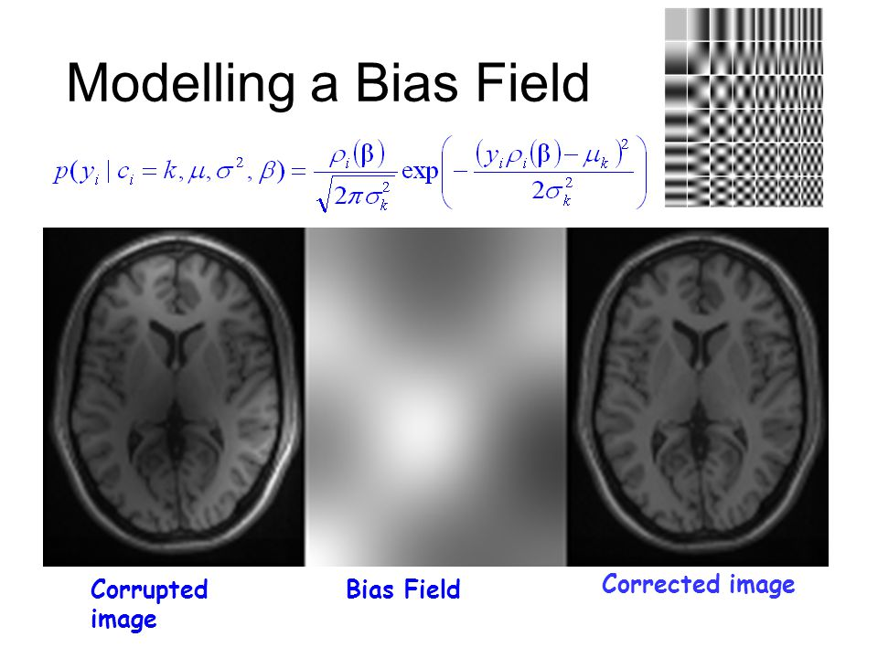 Modelling a Bias Field Corrupted image Corrected image Bias Field