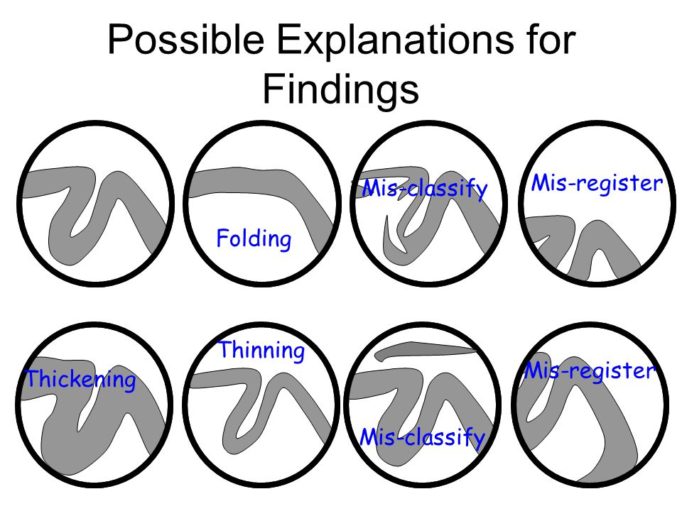 Possible Explanations for Findings Thickening Thinning Folding Mis-classify Mis-register