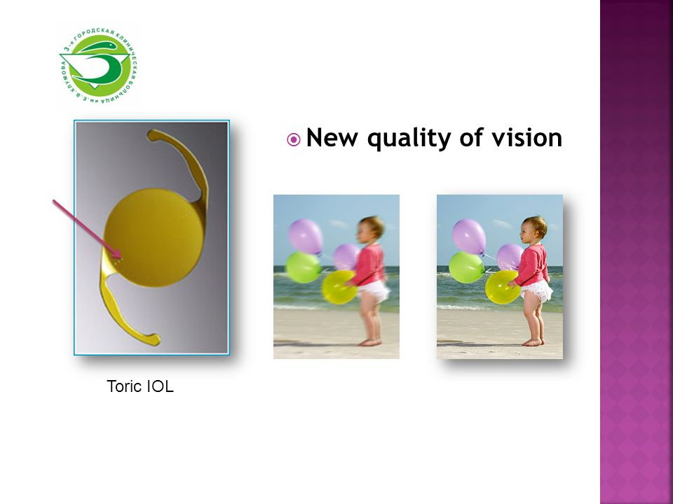  New quality of vision Toric IOL