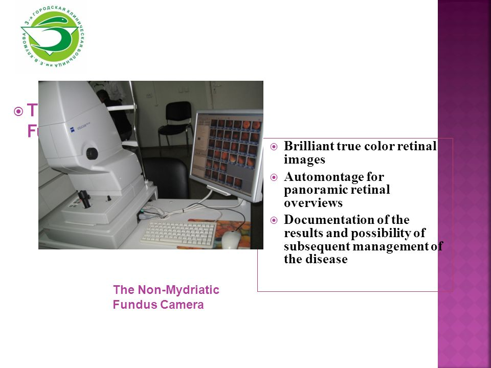  The Non-Mydriatic Fundus Camera  Brilliant true color retinal images  Automontage for panoramic retinal overviews  Documentation of the results and possibility of subsequent management of the disease The Non-Mydriatic Fundus Camera