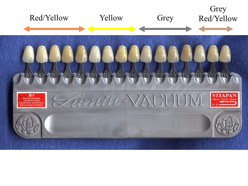 Red/YellowYellowGrey Grey Red/Yellow