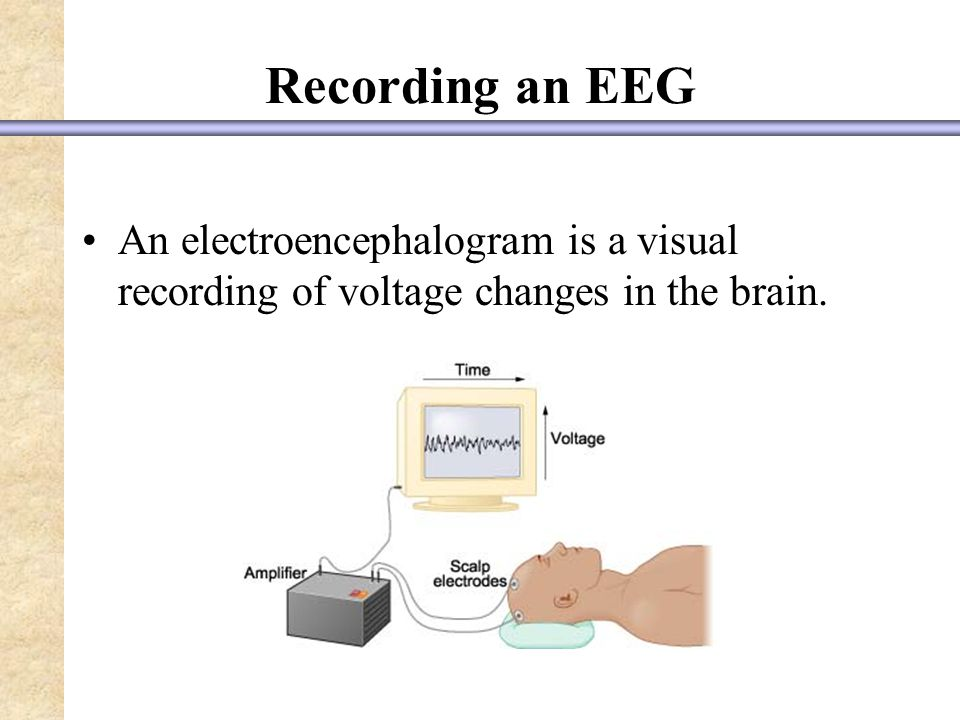 Recording an EEG An electroencephalogram is a visual recording of voltage changes in the brain.