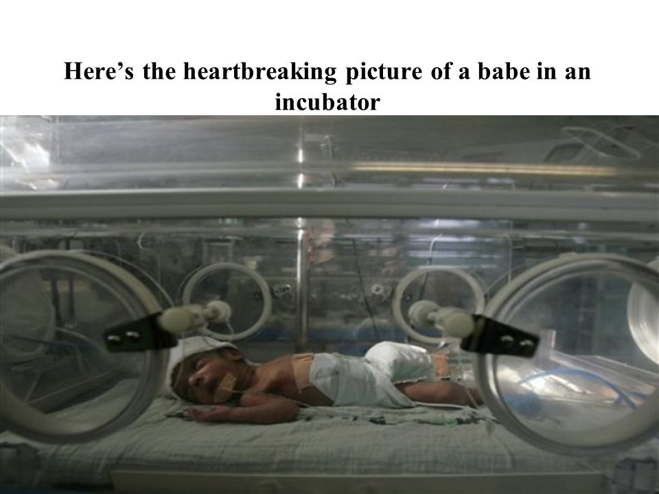 Here's the heartbreaking picture of a babe in an incubator