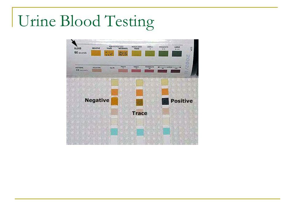 Urine Blood Testing