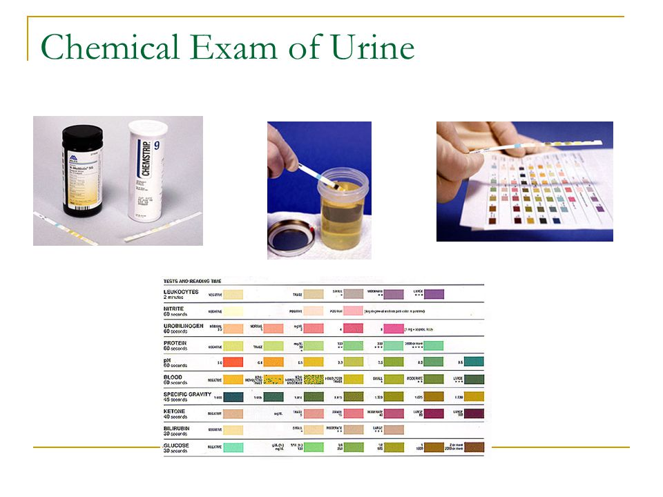 Chemical Exam of Urine