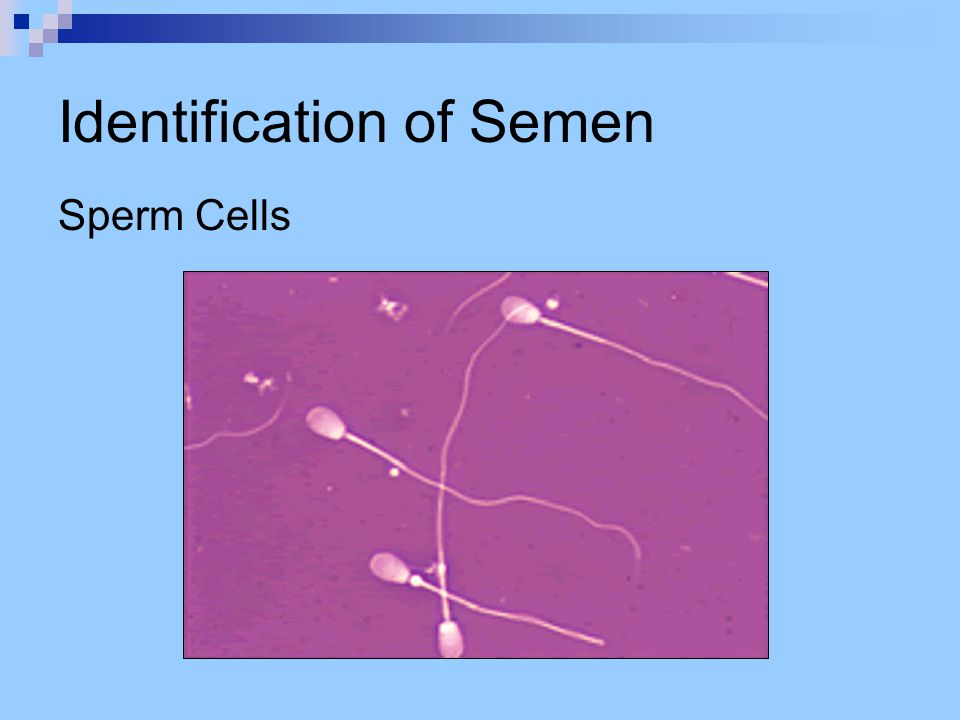 Identification of Feces Feces – end product after digestion Identifying Feces Can test for urobilinogen, but stain must be… apparent.