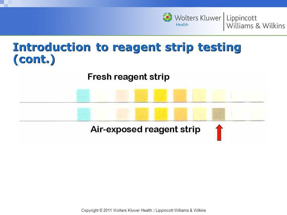 Copyright © 2011 Wolters Kluwer Health | Lippincott Williams & Wilkins Urine urobilinogen: false decrease A true absence of urobilinogen is not detectable.