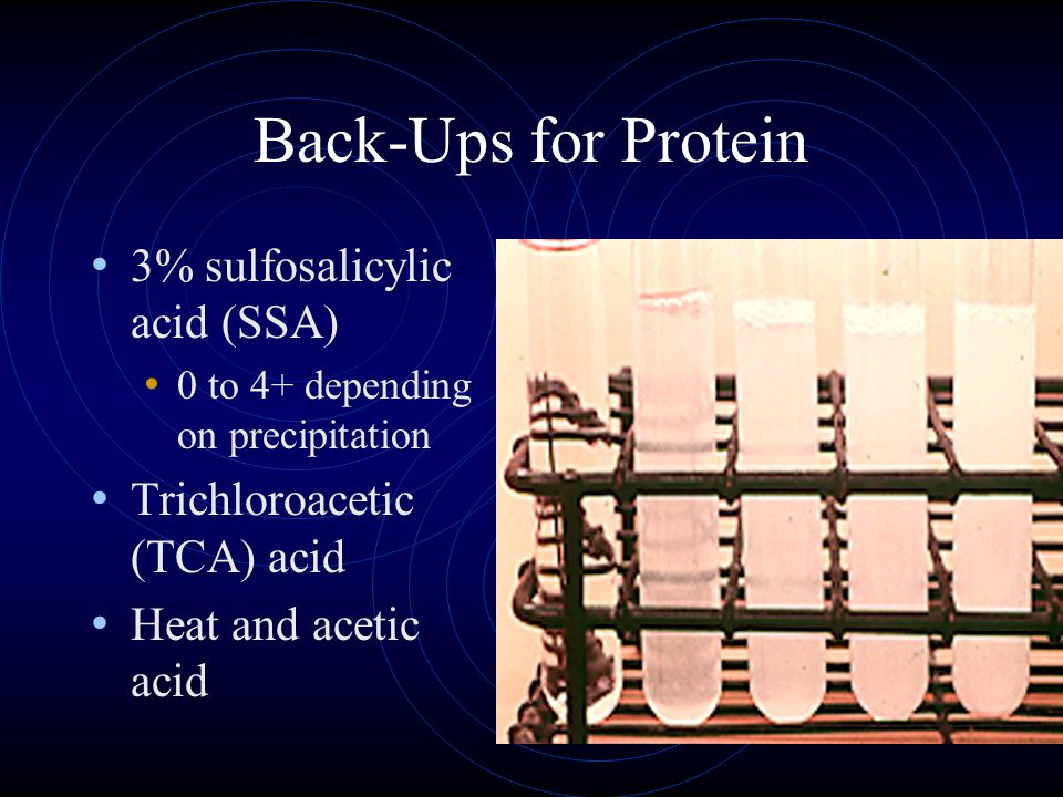 Back-Ups for Protein 3% sulfosalicylic acid (SSA) 0 to 4+ depending on precipitation Trichloroacetic (TCA) acid Heat and acetic acid