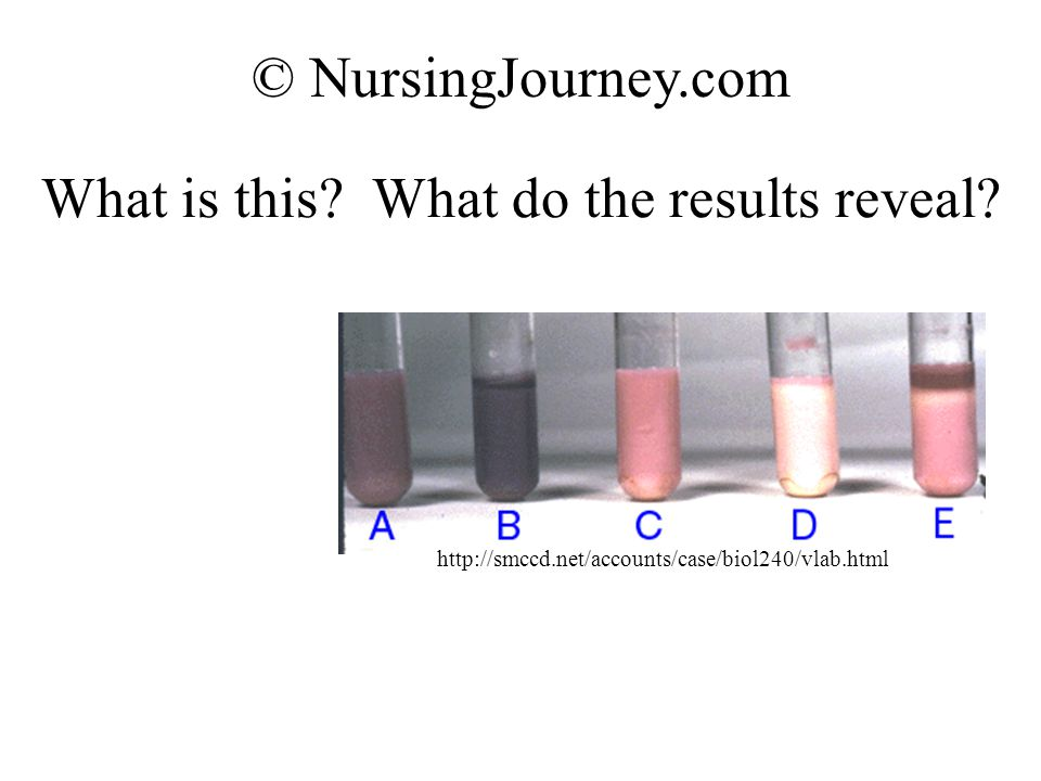 What is this? What do the results reveal? © NursingJourney.com http://smccd.net/accounts/case/biol240/vlab.html