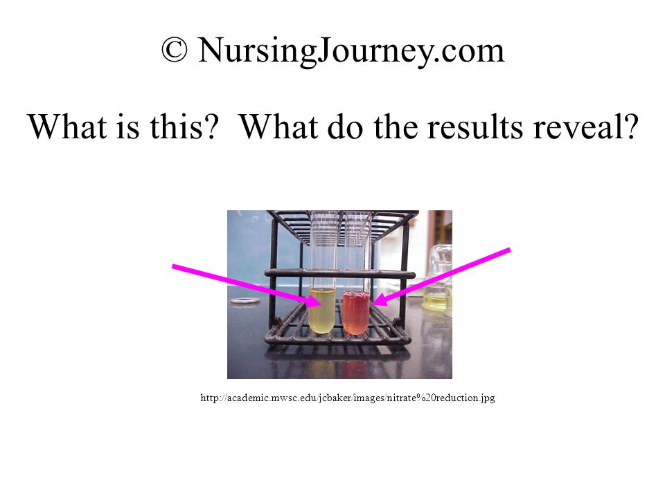 What is this? What do the results reveal? © NursingJourney.com http://academic.mwsc.edu/jcbaker/images/nitrate%20reduction.jpg