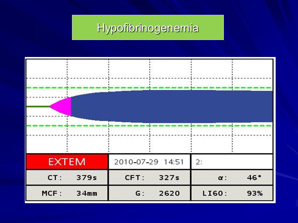 Hypofibrinogenemia
