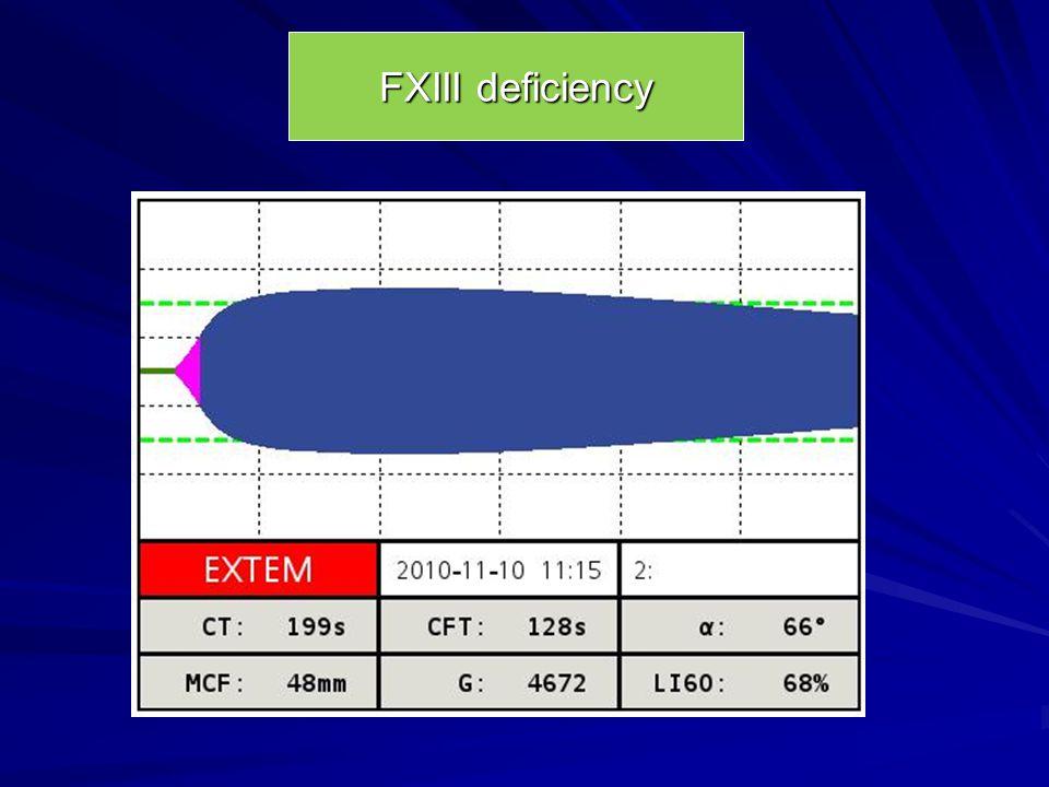FXIII deficiency