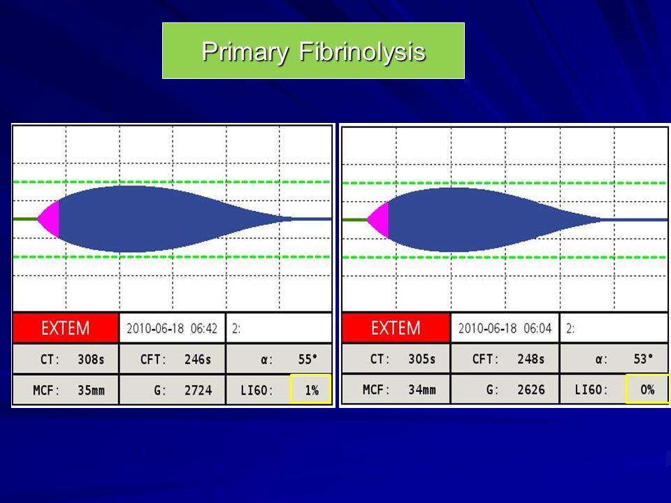 Primary Fibrinolysis