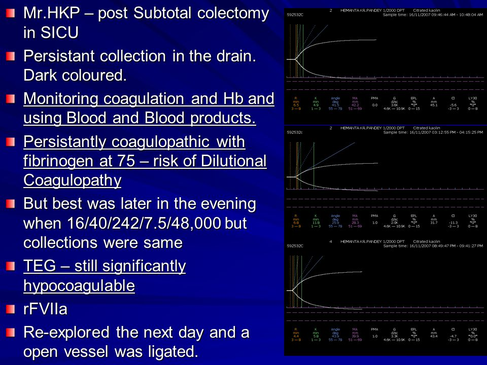Mr.HKP – post Subtotal colectomy in SICU Persistant collection in the drain.