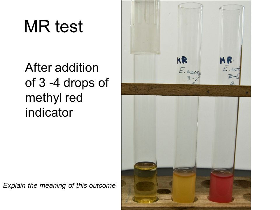 VP Test After addition of 15 drops of VP reagent A, and 5 drops of VP reagent B Explain the meaning of this outcome E.