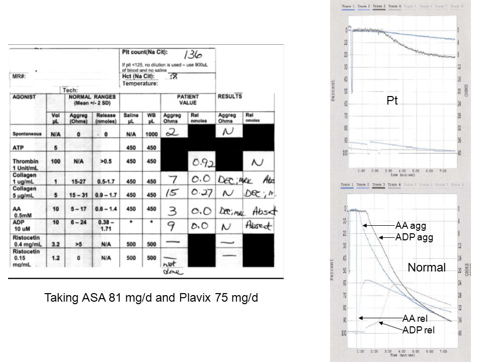 AA agg ADP agg AA rel ADP rel Pt Normal Taking ASA 81 mg/d and Plavix 75 mg/d