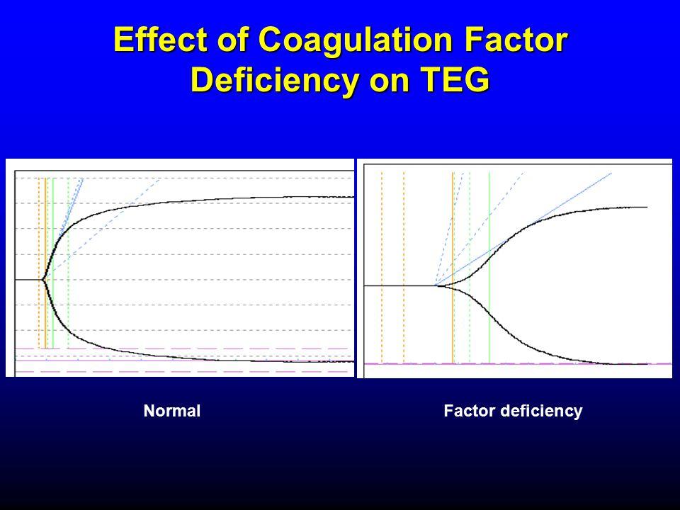 Effect of Coagulation Factor Deficiency on TEG NormalFactor deficiency