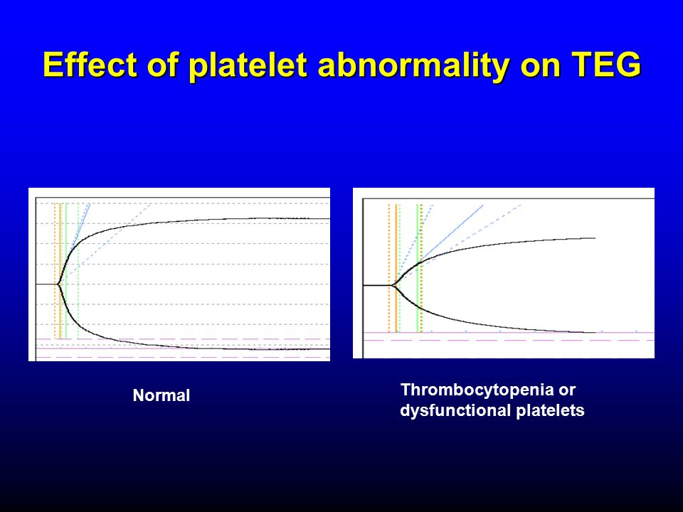 Effect of platelet abnormality on TEG Normal Thrombocytopenia or dysfunctional platelets