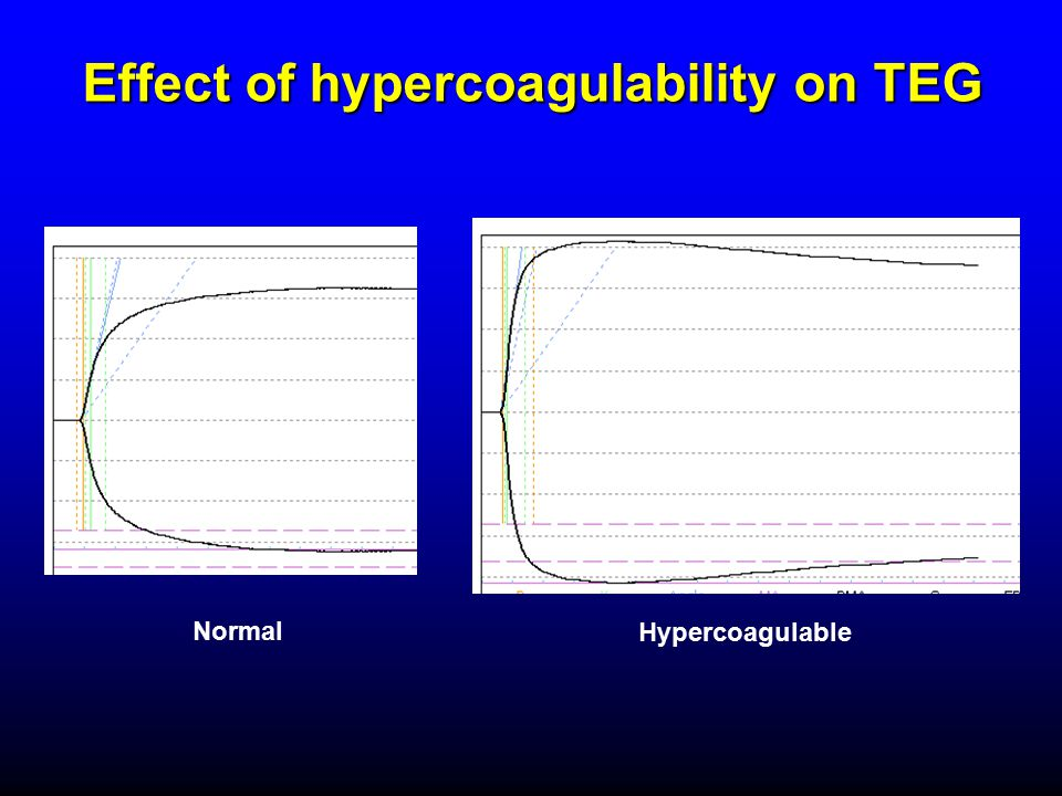 Effect of hypercoagulability on TEG Normal Hypercoagulable