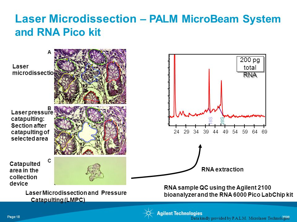 Page 18 2008 Laser Microdissection and Pressure Catapulting (LMPC) RNA extraction A B C RNA sample QC using the Agilent 2100 bioanalyzer and the RNA 6000 Pico LabChip kit Laser Microdissection – PALM MicroBeam System and RNA Pico kit Data kindly provided by P.A.L.M.