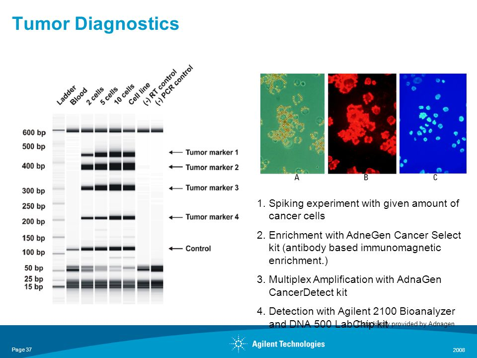 Page 37 2008 Tumor Diagnostics Data kindly provided by Adnagen 1.Spiking experiment with given amount of cancer cells 2.Enrichment with AdneGen Cancer Select kit (antibody based immunomagnetic enrichment.) 3.Multiplex Amplification with AdnaGen CancerDetect kit 4.Detection with Agilent 2100 Bioanalyzer and DNA 500 LabChip kit