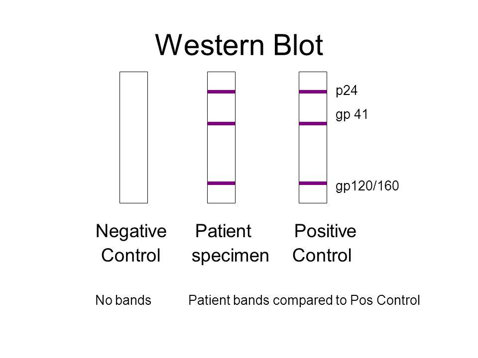 Western Blot Negative Patient Positive Control specimen Control No bands Patient bands compared to Pos Control p24 gp 41 gp120/160