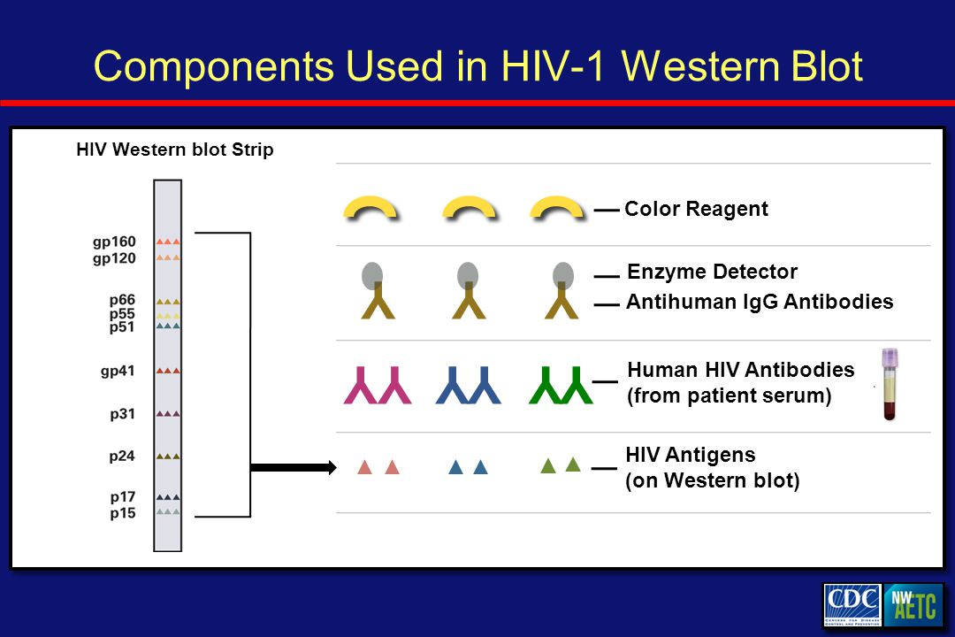 Components Used in HIV-1 Western Blot Human HIV Antibodies (from patient serum) YYYY HIV Western blot Strip YY HIV Antigens (on Western blot) YYY Antihuman IgG Antibodies Enzyme Detector Color Reagent