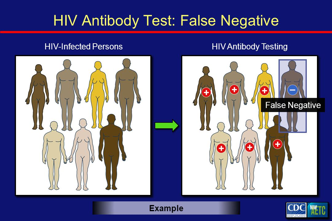 HIV Antibody Test: False Negative HIV Antibody TestingHIV-Infected Persons False Negative Example