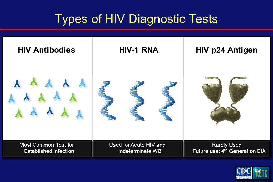 Diagnosing Acute HIV: Acute HIV Acute HIV = patients may present with acute retroviral syndrome/illness Acute HIV Infection Antibody Titer Detectable Antibody HIV RNA
