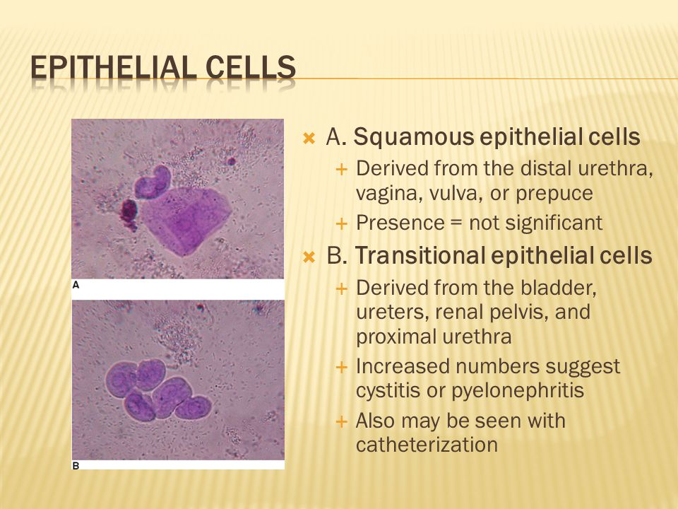  A. Squamous epithelial cells  Derived from the distal urethra, vagina, vulva, or prepuce  Presence = not significant  B. Transitional epithelial