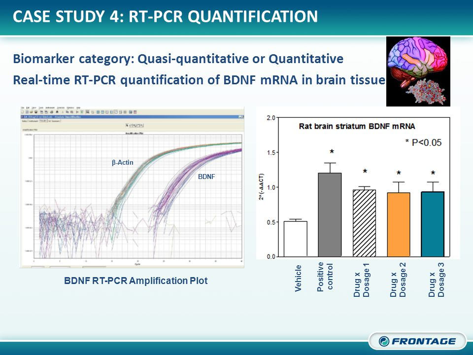 CORPORATE OVERVIEW CASE STUDY 4: RT-PCR QUANTIFICATION Biomarker category: Quasi-quantitative or Quantitative Real-time RT-PCR quantification of BDNF mRNA in brain tissue β-Actin ΒDNF Vehicle Positive control Drug x Dosage 1 Drug x Dosage 2 Drug x Dosage 3 BDNF RT-PCR Amplification Plot