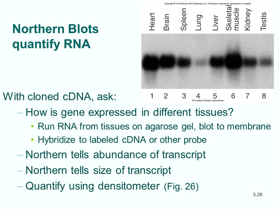 5-26 Northern Blots quantify RNA With cloned cDNA, ask: –How is gene expressed in different tissues? Run RNA from tissues on agarose gel, blot to memb