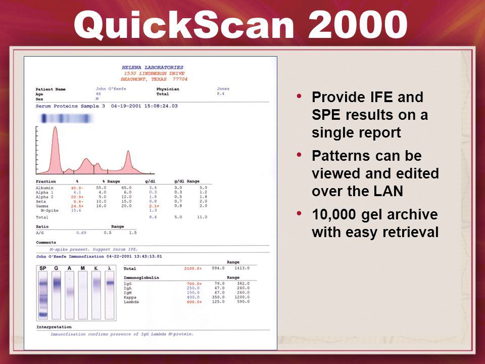 QuickScan 2000 Provide IFE and SPE results on a single report Patterns can be viewed and edited over the LAN 10,000 gel archive with easy retrieval