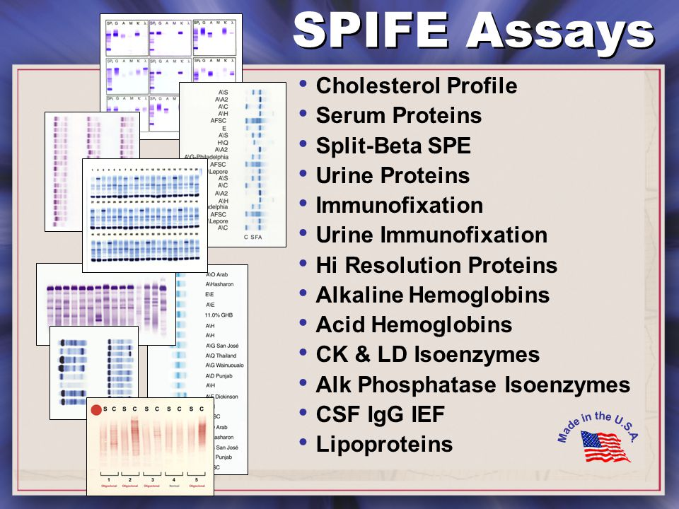 SPIFE Assays Cholesterol Profile Serum Proteins Split-Beta SPE Urine Proteins Immunofixation Urine Immunofixation Hi Resolution Proteins Alkaline Hemoglobins Acid Hemoglobins CK & LD Isoenzymes Alk Phosphatase Isoenzymes CSF IgG IEF Lipoproteins