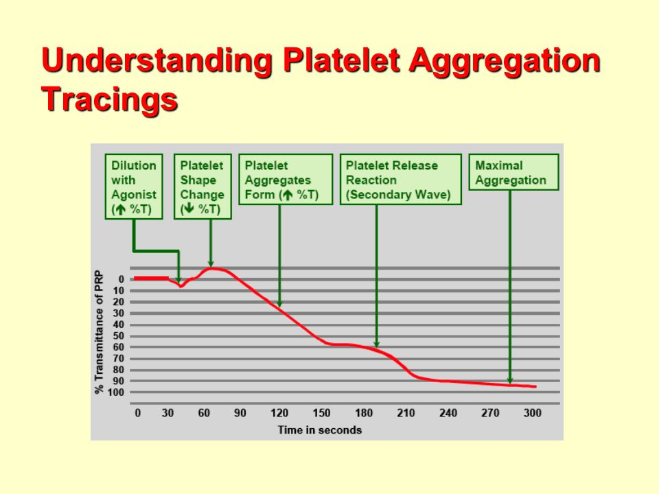 Understanding Platelet Aggregation Tracings