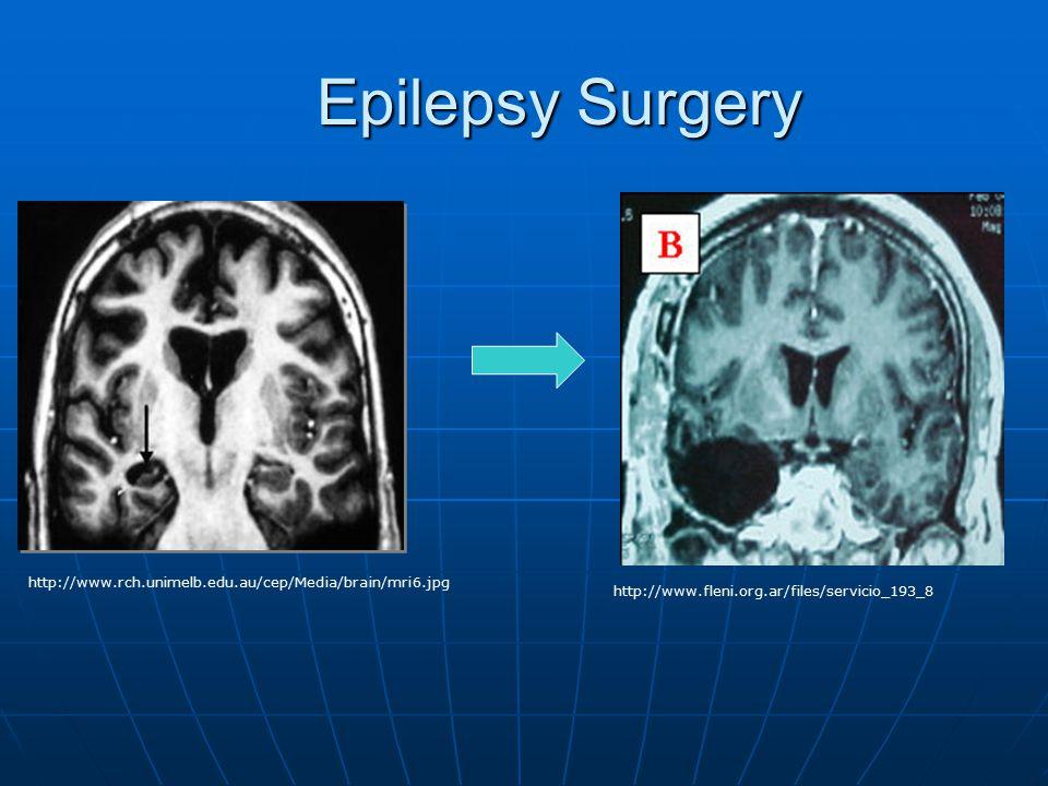 Epilepsy Surgery http://www.rch.unimelb.edu.au/cep/Media/brain/mri6.jpg http://www.fleni.org.ar/files/servicio_193_8